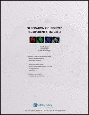 Generation of Induced Pluripotent Stem Cells