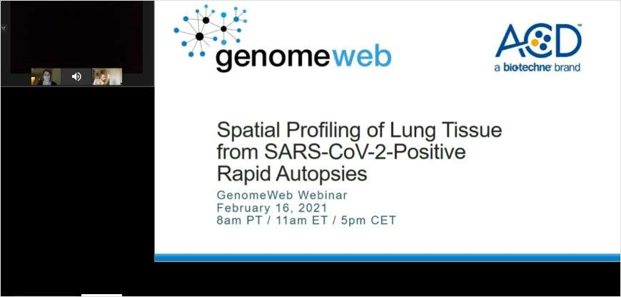 Spatial Profiling of Lung Tissue from SARS-CoV-2-Positive Rapid Autopsies