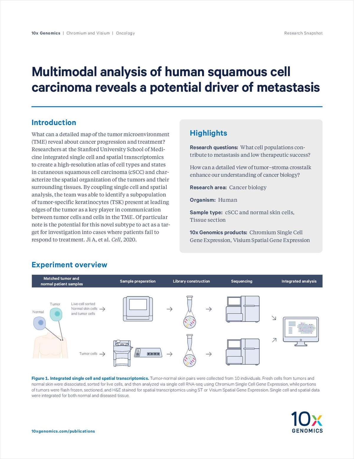 Multimodal Analysis of Human Squamous Cell Carcinoma Reveals a Potential Driver of Metastasis